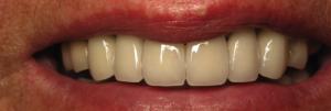 Dentist-Hanover-PA-3