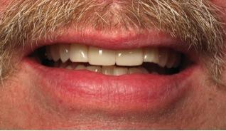 Dentist-Hanover-PA-2