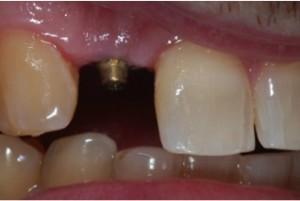 Dentist-in-Hanover-3