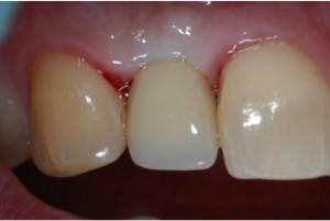 Dentist-in-Hanover-PA-3