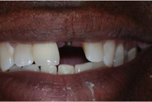 Hanover-Dentist-3