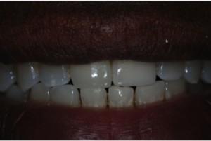 Hanover-PA-Dentist-3