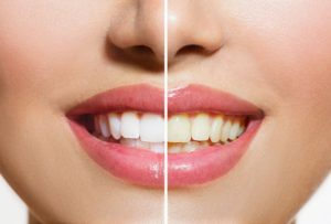 Hanover PA Dentist   Stained Teeth